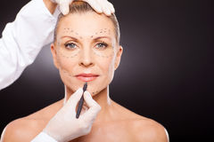 Mid age plastic surgery royalty free stock photography