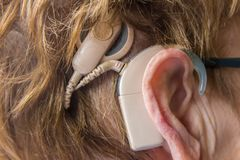 Person wearing a hearing aid implant electronic device Royalty Free Stock Images