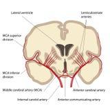 Midden hersenslagader stock illustratie