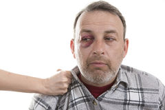 Middle-aged Caucasian male Emotional Portrait with a Real Bruise. Female hand holding a Man with Black Eye by the collar. Shiner. Man's face after the fight and Stock Photo