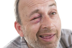 Middle-aged Caucasian male Emotional Portrait with a Real Bruise royalty free stock image