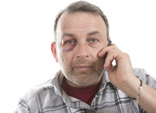 Middle-aged Caucasian male Emotional Portrait with a Real Bruise. Man with Black Eye speaks by phone, Shiner. Man's face after the fight and assault. Middle-aged Stock Photography