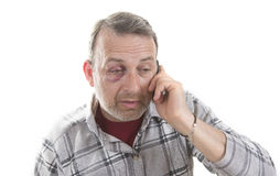 Middle-aged Caucasian male Emotional Portrait with a Real Bruise stock image