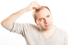Middle-aged man concerned by hair loss Baldness alopecia Black and white. Middle-aged man concerned by hair loss bald baldness alopecia Stock Images