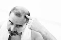 Middle-aged man concerned by hair loss Baldness alopecia close up black and white, white background. Middle-aged man concerned by hair loss bald baldness royalty free stock photography