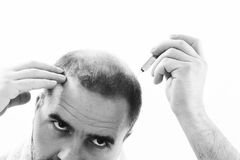 Middle-aged man concerned by hair loss Baldness alopecia close up black and white, white background Royalty Free Stock Photos