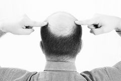 Middle-aged man concerned by hair loss Baldness alopecia close up black and white, white background Royalty Free Stock Images