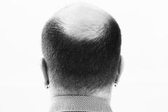 Middle-aged man concerned by hair loss Baldness alopecia close up black and white, white background Royalty Free Stock Photo