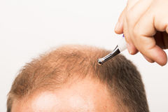 Middle-aged man concerned by hair loss Baldness alopecia close up white background. Middle-aged man concerned by hair loss bald baldness alopecia white Royalty Free Stock Photo