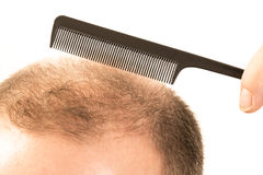 Middle-aged man concerned by hair loss Baldness alopecia close up white background. Middle-aged man concerned by hair loss bald baldness alopecia white Royalty Free Stock Image