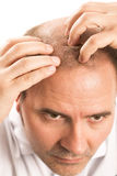 Middle-aged man concerned by hair loss Baldness alopecia isolated. Middle-aged man concerned by hair loss bald baldness alopecia isolated stock image