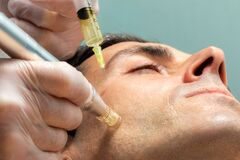 Free Middle Aged Man Having Micro Needling Treatment On Cheek Stock Image - 175405921