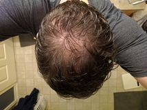 Middle aged man& x27;s balding head selfie Royalty Free Stock Photo