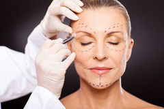 Free Middle Aged Plastic Surgery Royalty Free Stock Image - 29801786