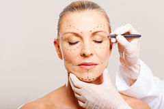 Woman correction lines. Middle aged woman with correction lines before cosmetic surgery Royalty Free Stock Photos