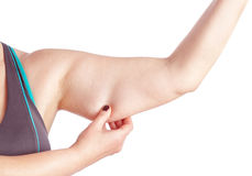 Middle-aged woman holding a hand with excess fat. On a white background stock photo