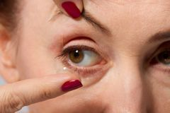 Middle aged woman with pouches under the eyes putting contact lens in her brown eye, close up and macro view. Medicine and vision Royalty Free Stock Photography