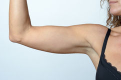 Middle aged woman showing flabby arm Royalty Free Stock Images