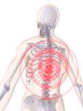 Middle back inflammmation Stock Photography