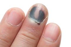 Middle Finger with Bruised Nail. Subungual Hematoma, on White Background royalty free stock photo