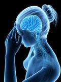 Migrena, megrim/ royalty ilustracja