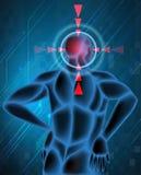 Migrena punkt w istocie ludzkiej royalty ilustracja
