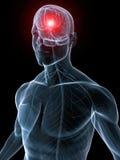 migreny migrena Obrazy Stock