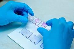 Mikroskop Mikrobiologisches Labor Form und pilzartige Kulturen Bakterielle Forschung mikrobiologie lizenzfreies stockfoto