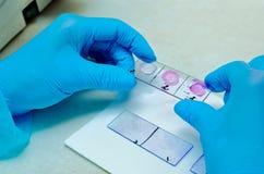 mikroskop Mikrobiologiskt laboratorium Form och svamp- kulturer Bakterie- forskning microbiology royaltyfri bild