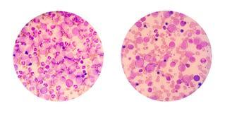 Mikroskopische Ansichten eines Blutausstrichs von der geduldigen Show MA der Leukämie Lizenzfreies Stockbild