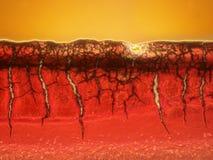 Mikroskopisk bild av en blodpropp Arkivfoton