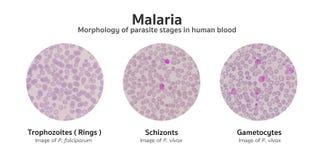 Mikroskopisk undersökning av blodfilmer från malaria smittat passande Fotografering för Bildbyråer
