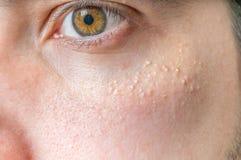 Milia (Milium) - boutons autour d'oeil sur la peau Photo stock