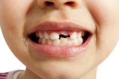 Milk teeth Royalty Free Stock Photos