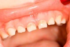 Milk teeth. In childhood denture, caries in frontal tooth Royalty Free Stock Photos