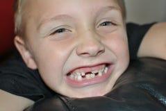 Milk teeth. Little boy changing milk teeth stock image