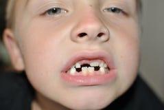 Milk teeth. Little boy changing milk teeth royalty free stock images