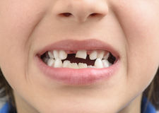 Milk tooth Stock Photo