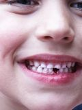 Milkteeth. Young boy shows his first fresh tooth-gap Stock Photos