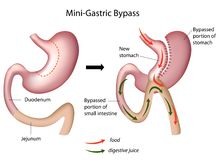 Mini gastric bypass surgery Stock Photography