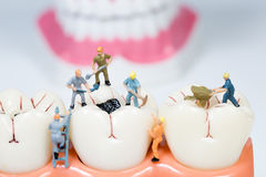 Miniature people clean tooth model Royalty Free Stock Images
