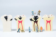 Miniature people clean tooth model Stock Photo