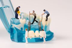Miniature people and dental model Royalty Free Stock Photo