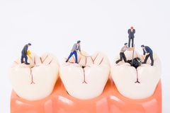 Miniature people and dental model. Dental care concept Royalty Free Stock Images