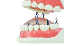 Miniature people and dental model object. Dental care concept Stock Images
