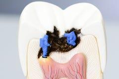 Miniatyrfolkforskare på arbete med den murkna tandmodellen Arkivfoto
