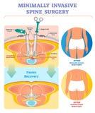 Minimal Invasionsdornchirurgie-Vektorillustration Beschriftetes Diagramm lizenzfreie abbildung