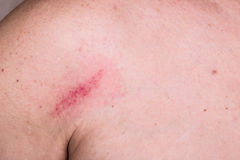 Minor bruise on skin between shoulder and chest Royalty Free Stock Photos