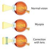 Miopia e miopia corrette dalla a meno la lente Fotografie Stock Libere da Diritti