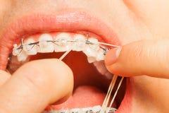 Mise de la ficelle en caoutchouc sur des dents de crochets d'accolades Photo stock